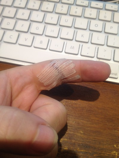 This is my finger after the stitches were removed.